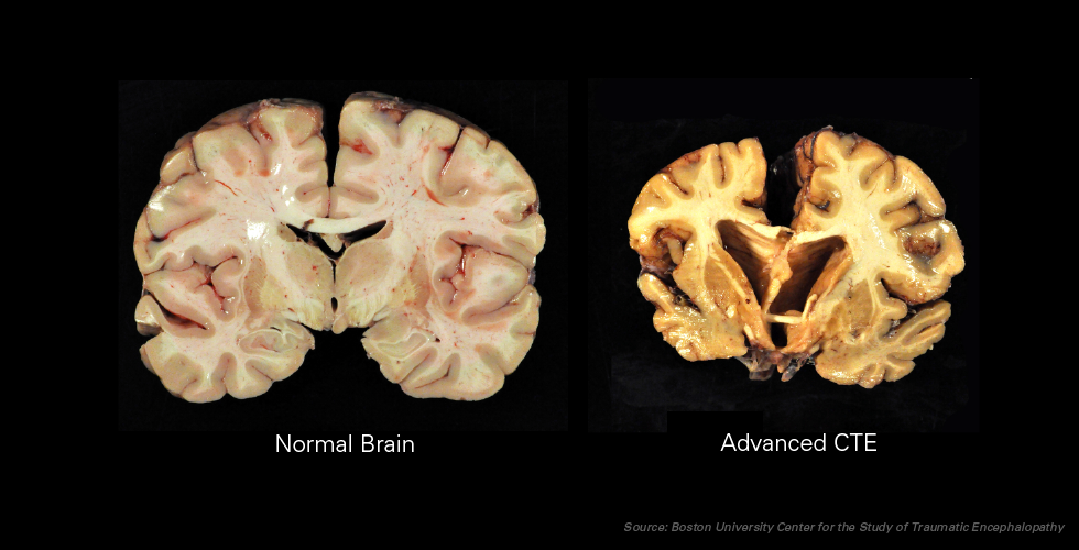 Picture of brains, with healthy brain on the left and a CTE-stricken brain on the right