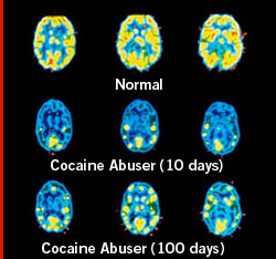 How Drug Addiction Affects The Human brain